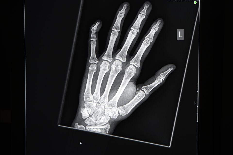 Röntgung der Hand